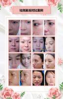 粉色清新祛斑美白亮肤美容宣传模板/美容院宣传/祛斑美容模板